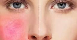 激素脸治疗恢复的方法,治愈激素脸,恢复水嫩肌肤