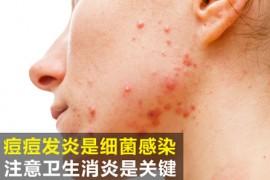 痘痘发炎红肿怎么办 注意几点让皮肤光滑无暇