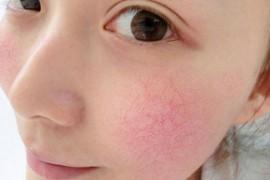 怎么知道是不是敏感皮肤,敏感肌肤自我检测预防和护理