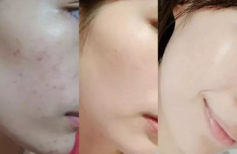 妙龄女满脸青春痘久治不愈 低剂量口服A酸战痘成功