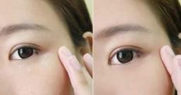脸上的脂肪粒暗粒有时候比痘痘更讨厌!3个预防暗粒的小方法,女生不要再增加脸上的脂肪粒哦