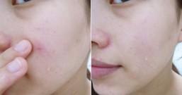 冒痘痘、粉刺多、毛孔大?美肤堂揭秘4种治疗有效祛痘