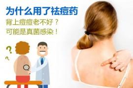 勿把真菌性毛囊炎错当青春痘,真菌性毛囊炎症状、原因与治疗方法