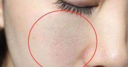 毛孔被螨虫堵死,是时候该给毛孔个洗澡了,去除螨虫只需3招