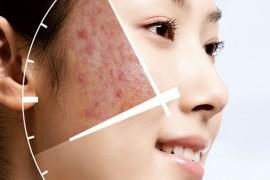 为什么会长痘痘,长痘痘是什么原因?青春痘的产生有许多复杂的因素
