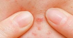 9成人发现脸上有螨虫时 脸上螨虫破百万 4种现象可以看出