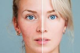 玫瑰痤疮不是暗疮!5大症状辨清 有何食疗可改善皮肤?